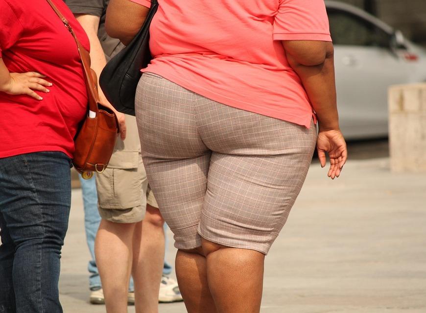 obese pixabay